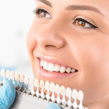 teeth whitening shade chart