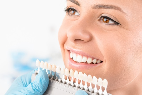 woman smiling porcelain veneers